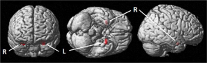 Activation of the bilateral amygdala